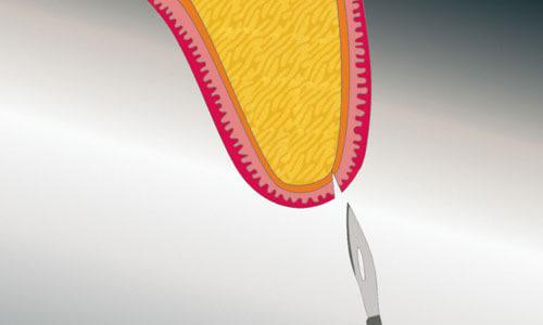 Implantologie: Behandlung