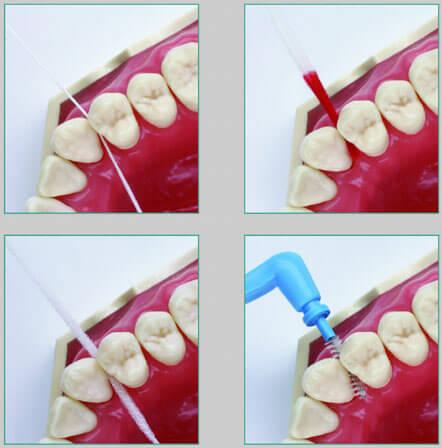 Parodontitis: Recall