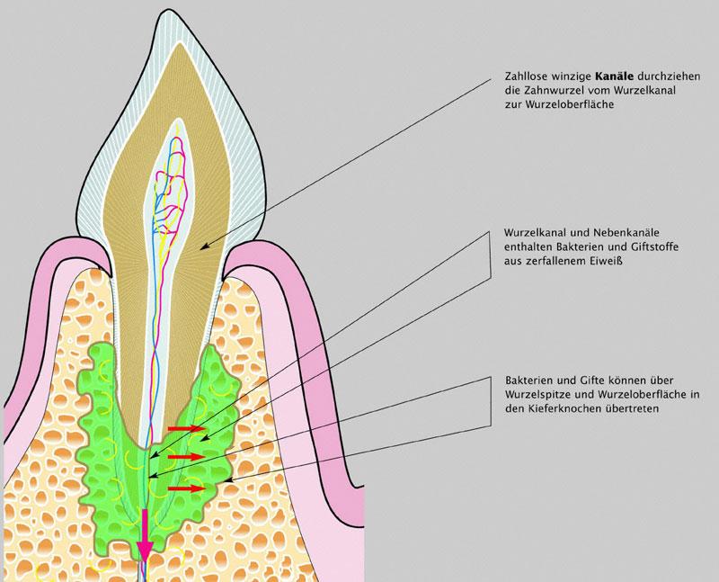 Zahnheilkunde: Störfelder im Körper